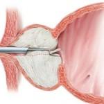 TURP resezione prostatica endoscopica