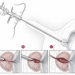 resezione prostatica endoscopica2