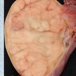 seminoma tumore testicolo