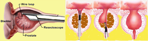 intervento transuretrale turp alla prostata cliniche a brescia d