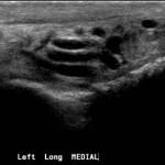 ecografia testicolo varicocele