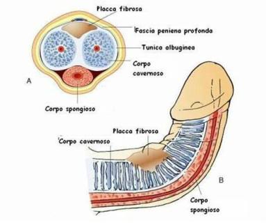 Tecniche di ingrandimento del pene a Roma - Dr. Francesco De Luca