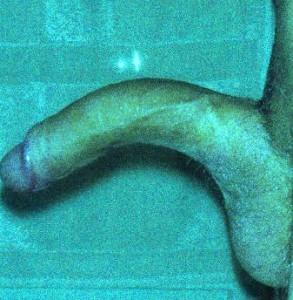 raddrizzare il pene chirurgicamente Ho avuto problemi di erezione