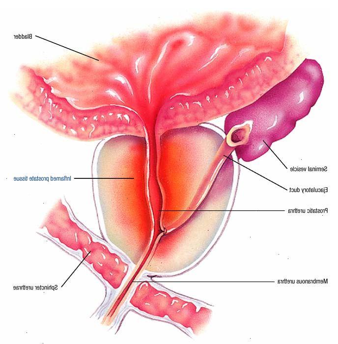 fastidio glande prostatite