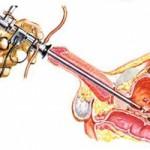resezione-endoscopica-vescicale