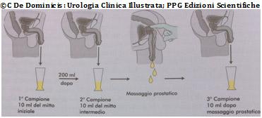 tampone uretrale dopo massaggio prostatico
