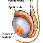 tumore testicolo2