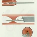 uretrotomia per stenosi uretrale