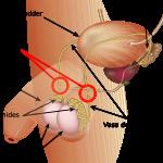 vasectomia2
