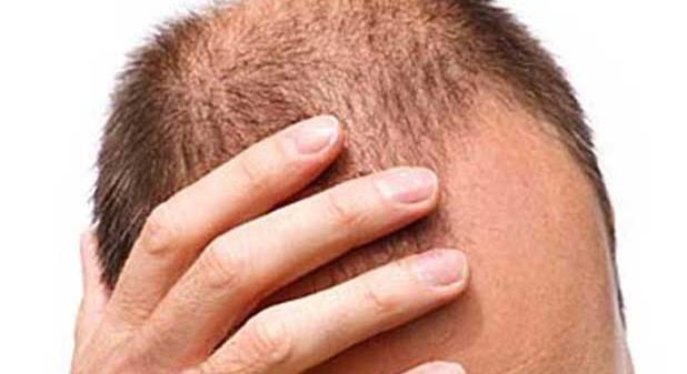 calvizie-e-prostata